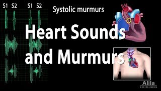 Nonton Heart Sounds And Heart Murmurs  Animation  Film Subtitle Indonesia Streaming Movie Download