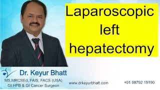 Lap left lateral hepatectomy