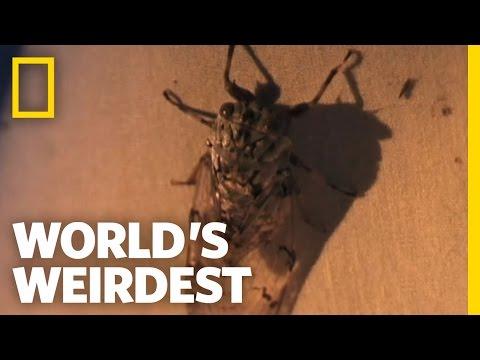 World's Weirdest - Larva Removed from a Girl's Scalp