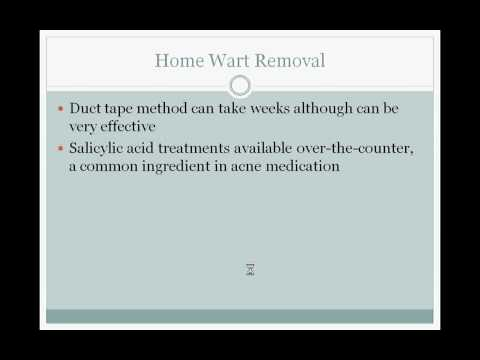 Wart Removal for Different Types of Warts