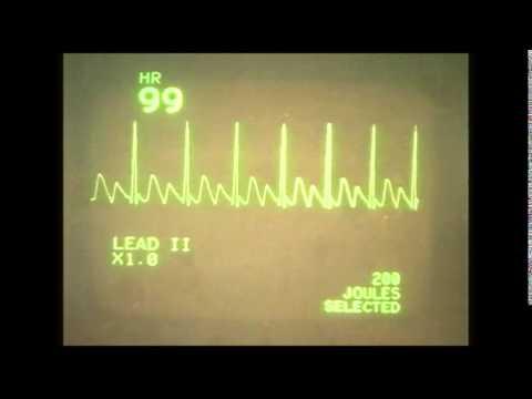 EKG (ECG) rhythms 3, Abnormal atrial rhythms