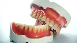 Интересные факты о зубных протезах