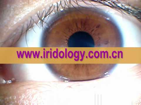 iriscopio - Iriscopios, camara para el Iris Mas Progmas de analisis del Iris.Iris iriscopio Portátil para Computador - Iridiologia ojos ... IRISCOPIO (Iriología) PORTATI...
