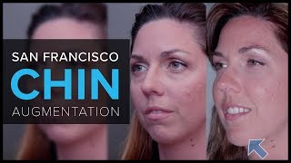 Learn About Chin Augmentation in San Francisco