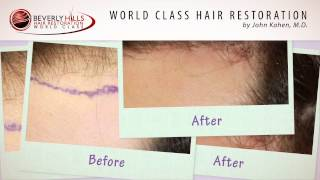 Beverly Hills Hair Restoration Results Video-Beverly Hills CA