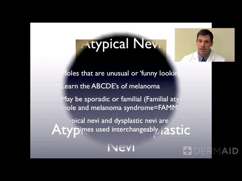 Atypical Nevi