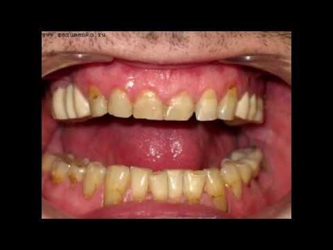 Лечение зубов   чувствительность