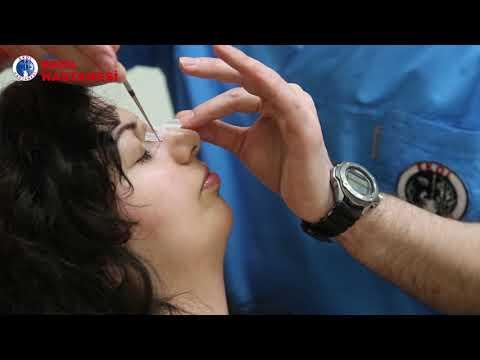 Kapalı (İZSİZ) Burun Estetiği Ameliyatı - İzmir Ekol Hastanesi