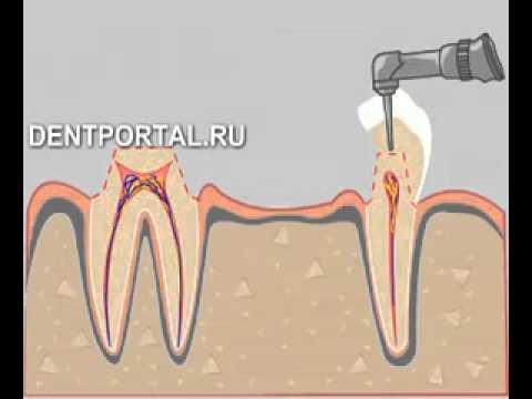 Протезирование зубов мостовидное