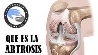 Artritis y Artrosis - ¿Qué es la artrosis y cómo se produce?.