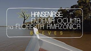Hanseníase: Endemia Oculta na Floresta Amazônica
