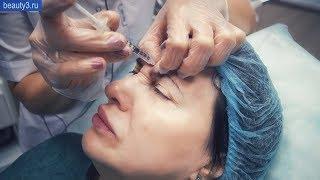Инъекции ботокс в области: верхняя треть лица, лоб, межбровье
