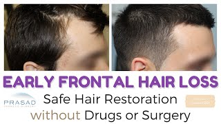 Video Frontal Hair Loss at 20 - Managing Hair Loss and Hair Thinning Safely without Surgery MP3, 3GP, MP4, WEBM, AVI, FLV November 2018