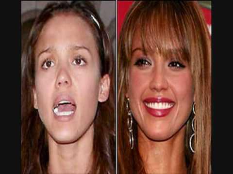celebs without makeup :)