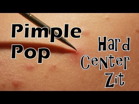 Pimple Pop – Hard Center Zit High Definition 1080p