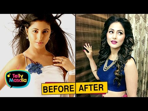 Top TV Actresses Before And After PLASTIC Surgery