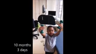 El primer niño del mundo en recibir un doble trasplante de manos ya es capaz de comer, escribir y vestirse solo 18 meses...