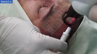 Сочетание лазерной шлифовки кожи лица и плазмотерапии