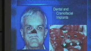 Maxillofacial Prosthodontics In The 21st Century