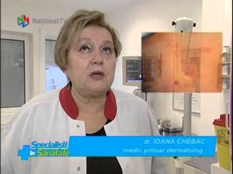 Specialisti in Sanatate - 21 aug 2015