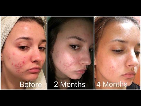 Tretinoin pills for acne : Sevrage prozac avis