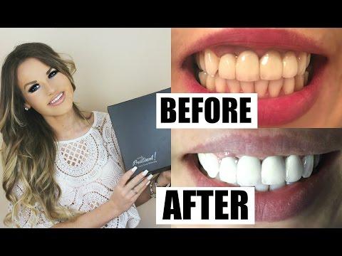 Teeth Whitening Routine | White Teeth FAST + FREE Kit!