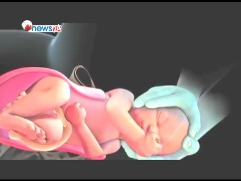 सिजेरियनबाट बच्चा जन्माउने क्रम रोकिएन - HEALTH NEWS