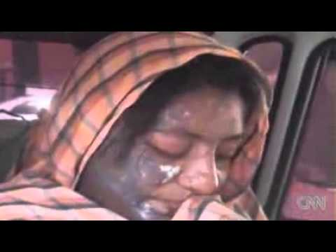 Video Actress severely burned in acid attack download in MP3, 3GP, MP4, WEBM, AVI, FLV January 2017