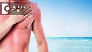 How do I treat sun sensitivity? - Dr. Rasya Dixit