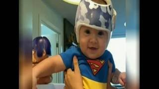 Tratamento com 'capacete' pode curar bebês que nascem com deformidade no crânio - Jornal da