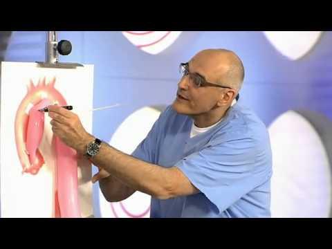 Коарктация аорты. Врожденный порок
