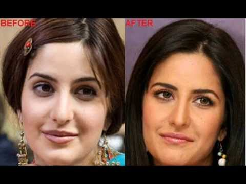bollywood stars plastic surgery
