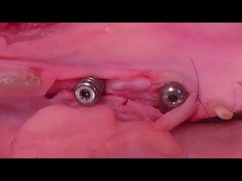 Создание межзубных сосоч-ков в области формирова-телей десневной манжеты