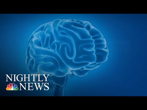New Drug Could Slow Down Progression Of Alzheimer's   NBC Nightly News