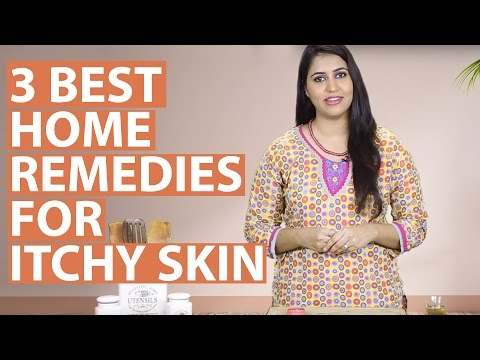 3 Best Home Remedies To Get Rid Of ITCHY SKIN ALLERGIES Naturally