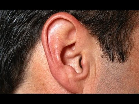 How to Get Rid of Tinnitus – Remedies to Cure Ringing Ears