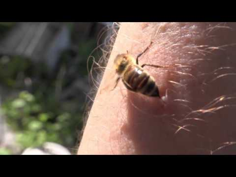 Bee Keeper Encourages People to Wait for Bee to Pull it's Stinger From Wound