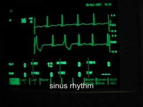 extrasystoles (ventricular bigeminus)