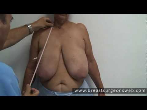 macromastia - Gigantomastia (Macromastia) is a contraindication for breast conserving surgery due to the impossibility of adequately dosing the breast irradiation fields. ...