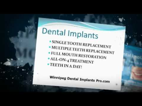Replace Dentures With New Dental Implants  in Winnipeg Manitoba