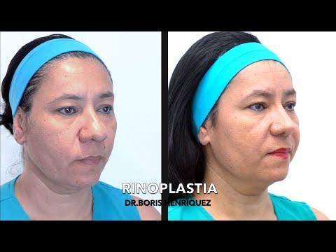 Boris Henríquez Gonzalez  Cirujano plástico