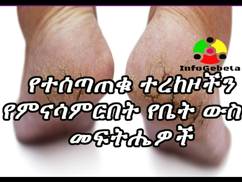 Ethiopia Cracked heels and its home made solutions