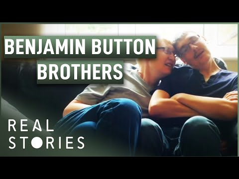 The Brothers Who Aged Backwards (Medical Documentary) | Real Stories