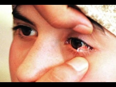 غريب :  فتاة صغيرة لبنانية مسلمة تبكي دموع من الكريستال