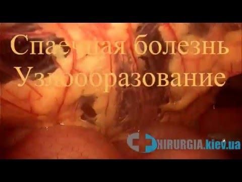 Лапароскопия при спаечной болезни
