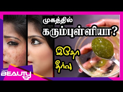 How to Remove Dark Spots From Face Naturally?  Black Spots and Acne Scars Removal in Tamil