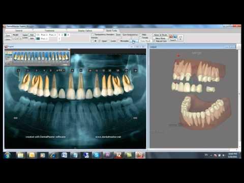 the best patient education software in Australia – Dentalmaster communicator