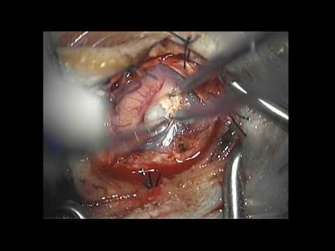 Brain Tumor Microsurgical Resection