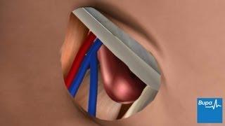 Open femoral hernia surgery
