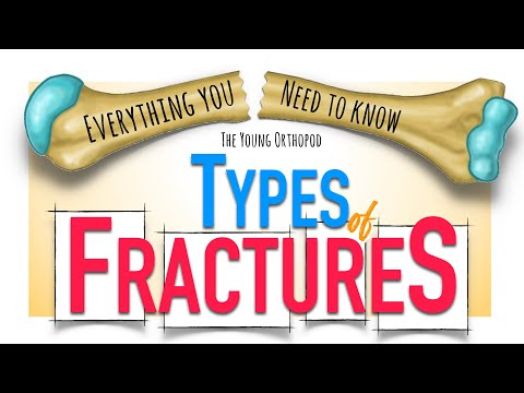 Bone Fracture: Types & Mechanisms   ANIMATION   Fracture classification   The Young Orthopod NEET PG